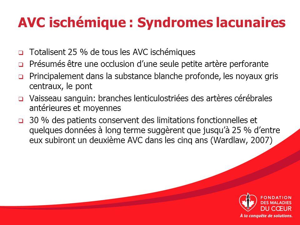 AVC ischémique : Syndromes lacunaires