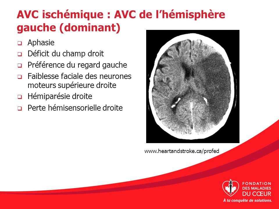 AVC ischémique : AVC de l'hémisphère gauche (dominant)
