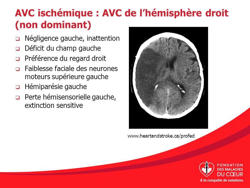 AVC ischémique : AVC de l'hémisphère droit (non dominant)