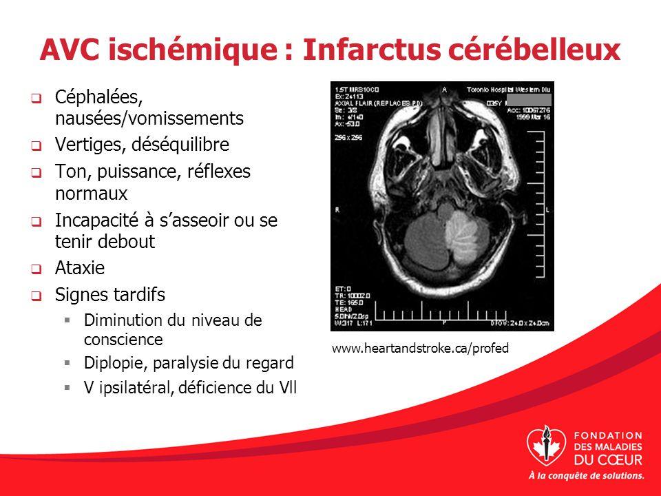 AVC ischémique : Infarctus cérébelleux