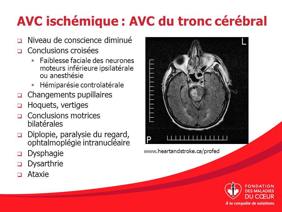 AVC ischémique : AVC du tronc cérébral