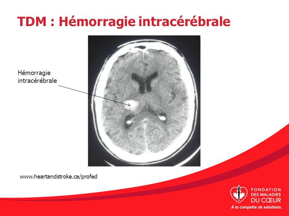 TDM : Hémorragie intracérébrale
