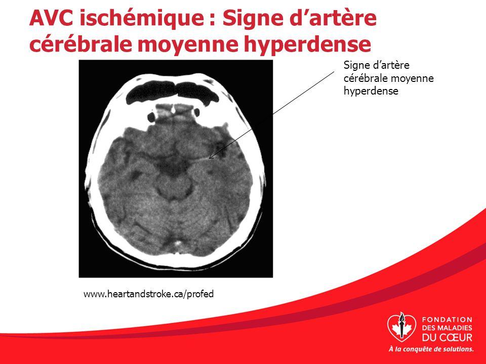AVC ischémique : Signe d'artère cérébrale moyenne hyperdense