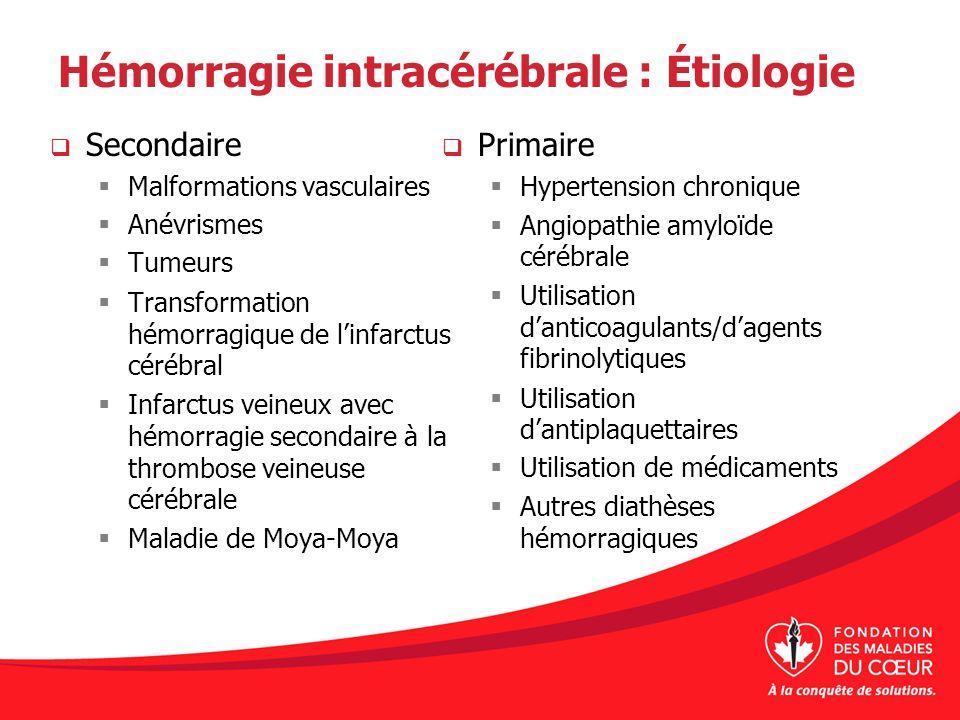 Hémorragie intracérébrale : Étiologie