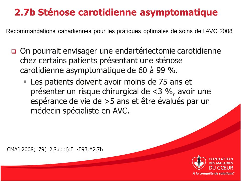2.7b Sténose carotidienne asymptomatique