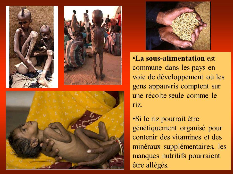 La sous-alimentation est commune dans les pays en voie de développement où les gens appauvris comptent sur une récolte seule comme le riz.