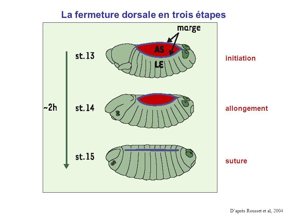 La fermeture dorsale en trois étapes
