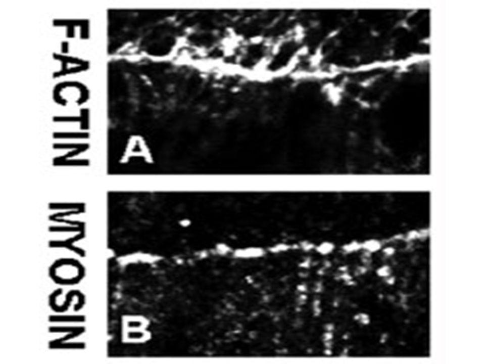 Accumulation d'actine filamenteuse (polymérisée) et de myosine non musculaire à la marge