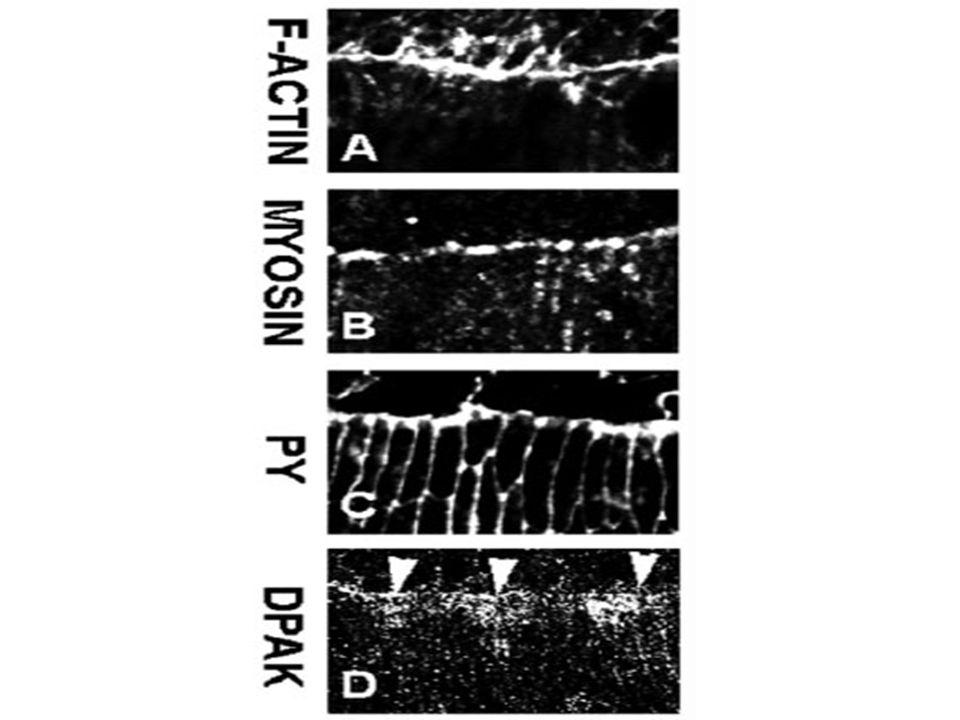 Accumulation d'actine et de myosine non musculaire à la marge