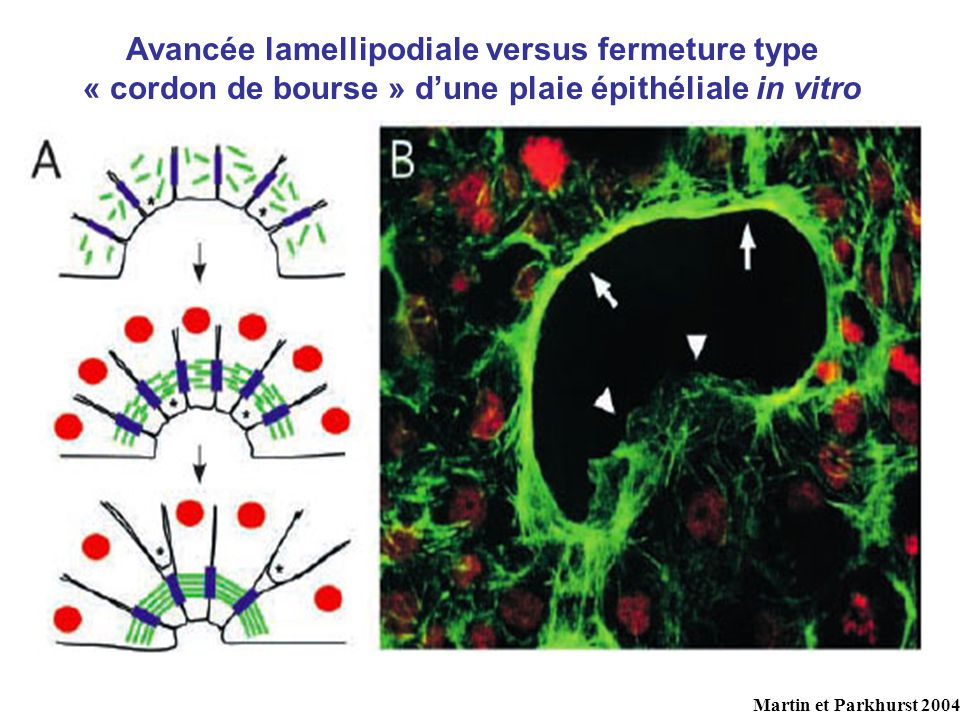 Avancée lamellipodiale versus fermeture type « cordon de bourse » d'une plaie épithéliale in vitro
