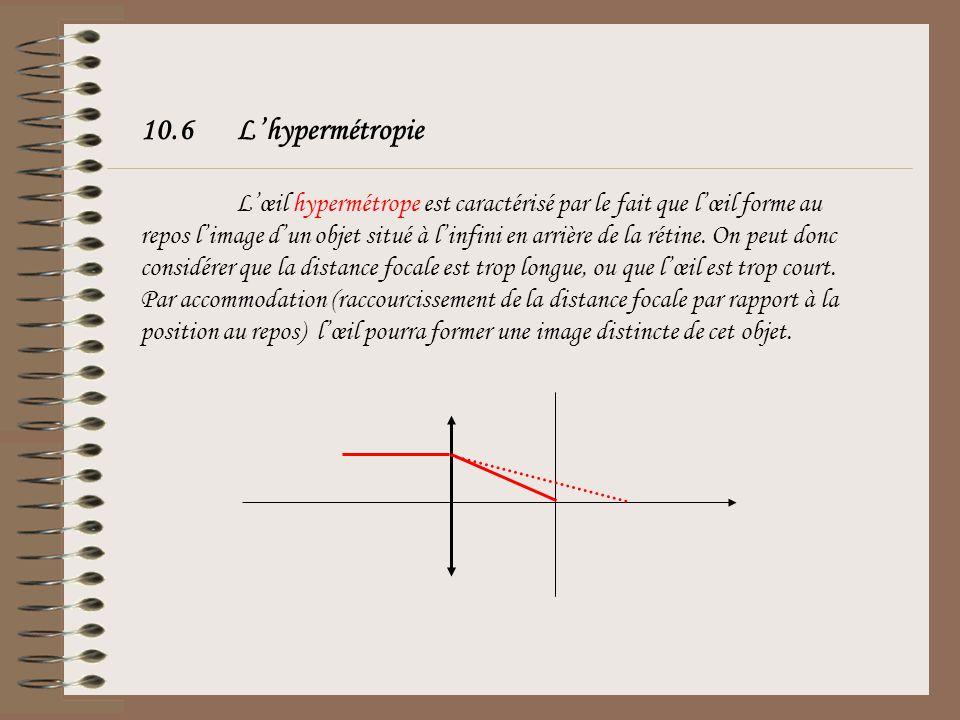 10.6 L'hypermétropie