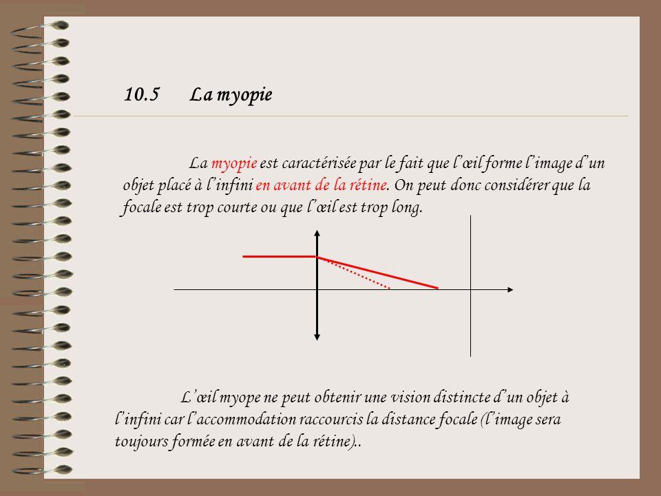 10.5 La myopie