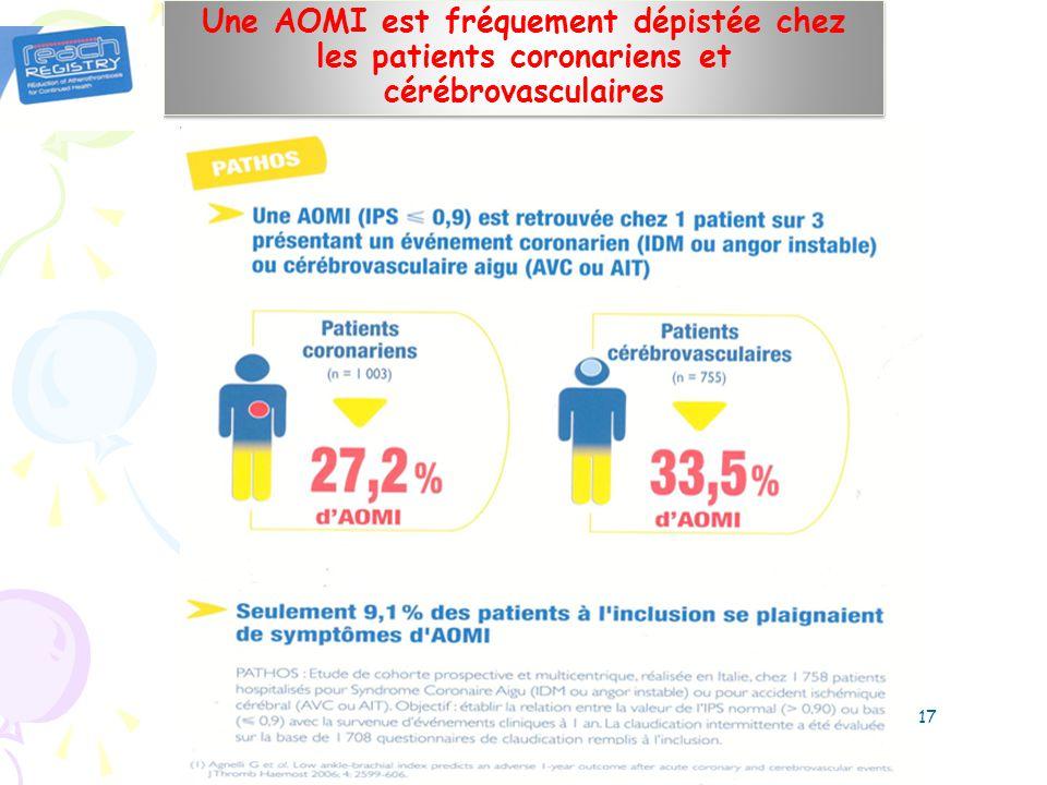 Une AOMI est fréquement dépistée chez les patients coronariens et cérébrovasculaires