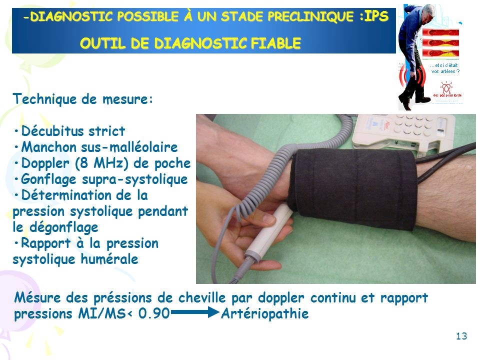 -DIAGNOSTIC POSSIBLE À UN STADE PRECLINIQUE :IPS