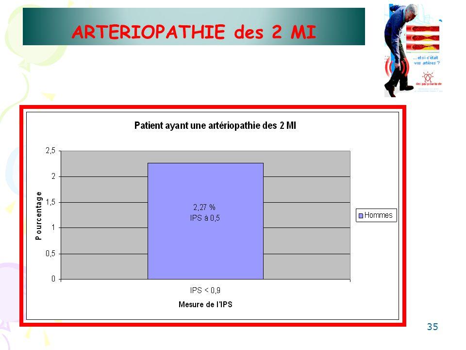 ARTERIOPATHIE des 2 MI