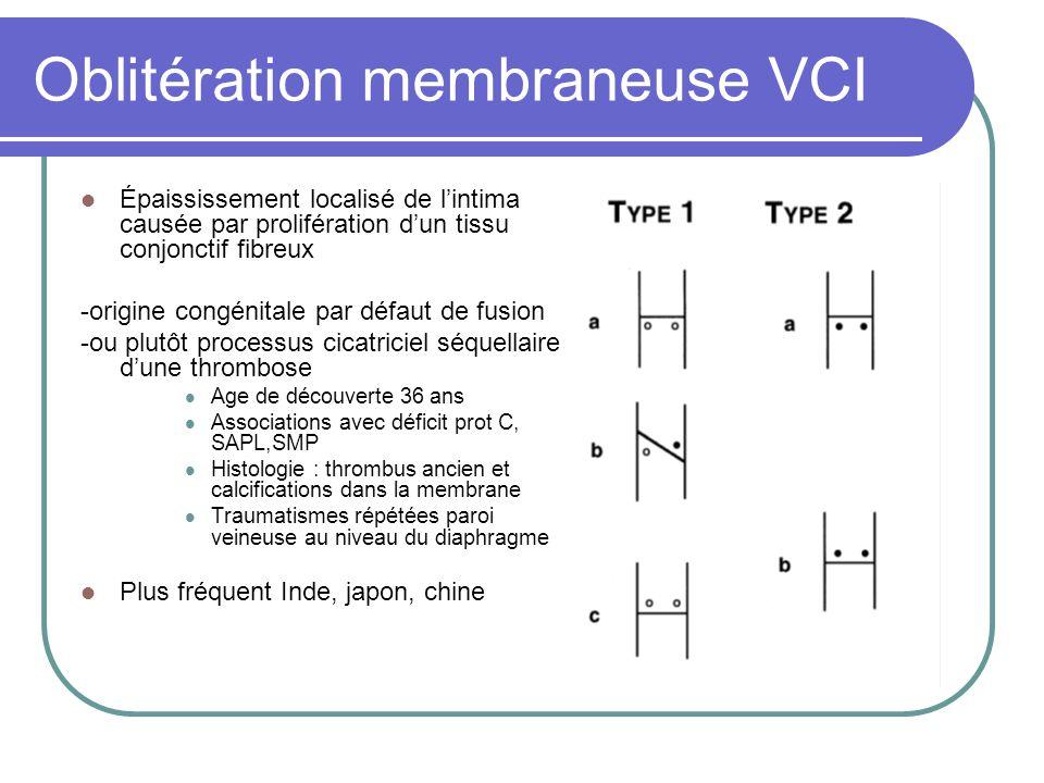 Oblitération membraneuse VCI