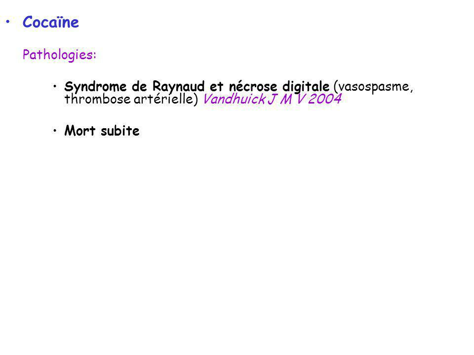 Cocaïne Pathologies: Syndrome de Raynaud et nécrose digitale (vasospasme, thrombose artérielle) Vandhuick J M V 2004.