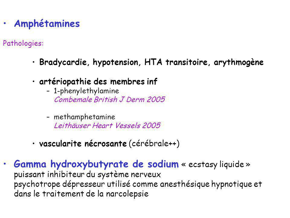 Gamma hydroxybutyrate de sodium « ecstasy liquide »