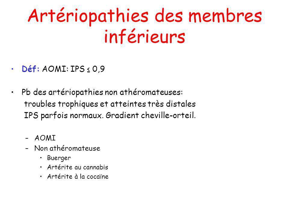 Artériopathies des membres inférieurs