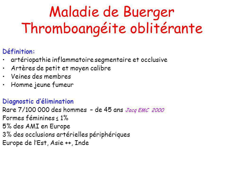 Maladie de Buerger Thromboangéite oblitérante