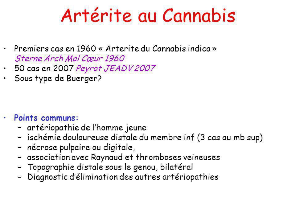 Artérite au Cannabis Premiers cas en 1960 « Arterite du Cannabis indica » Sterne Arch Mal Cœur 1960.