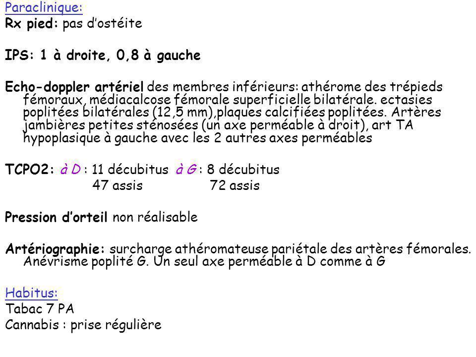 Paraclinique: Rx pied: pas d'ostéite. IPS: 1 à droite, 0,8 à gauche.