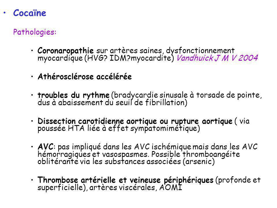 Cocaïne Pathologies: Coronaropathie sur artères saines, dysfonctionnement myocardique (HVG IDM myocardite) Vandhuick J M V 2004.
