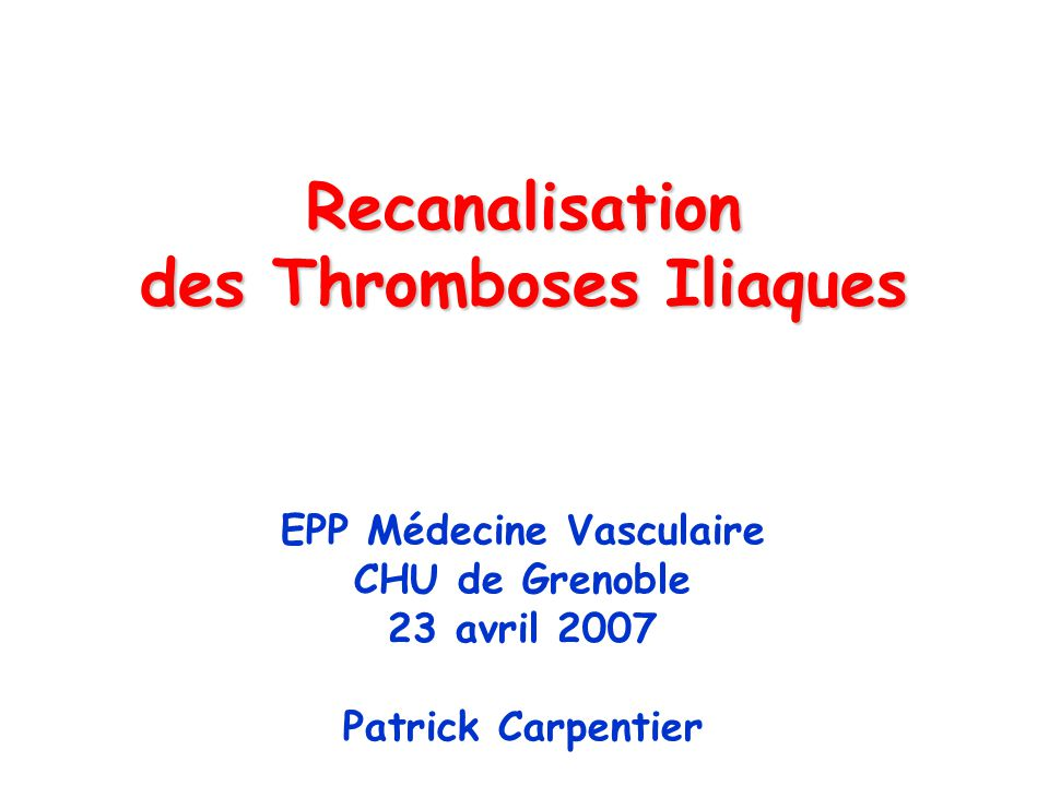 Recanalisation des Thromboses Iliaques