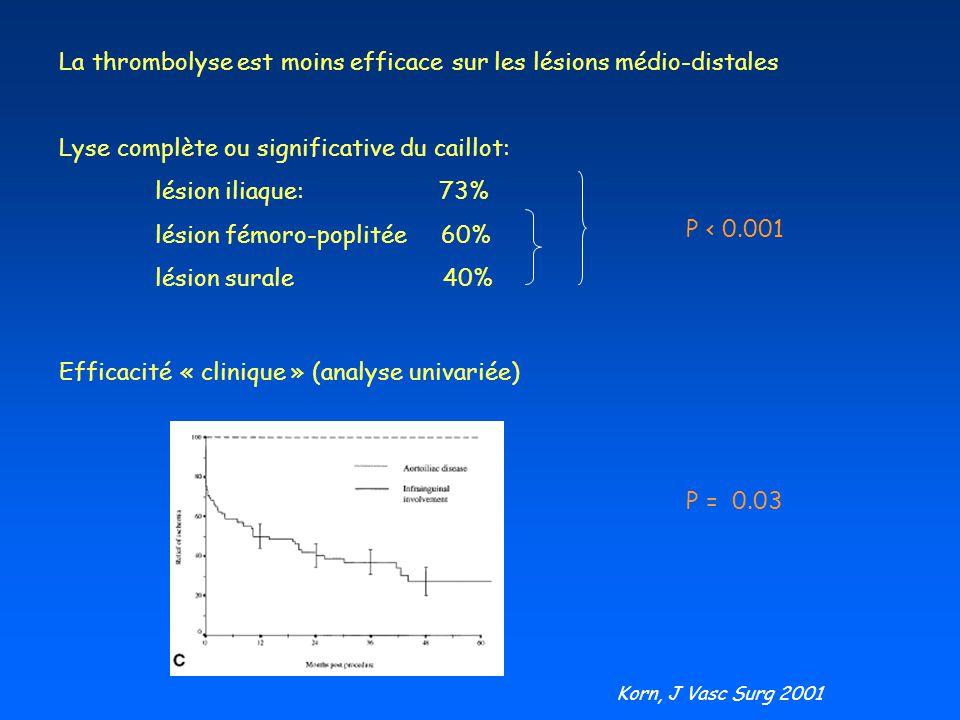 La thrombolyse est moins efficace sur les lésions médio-distales