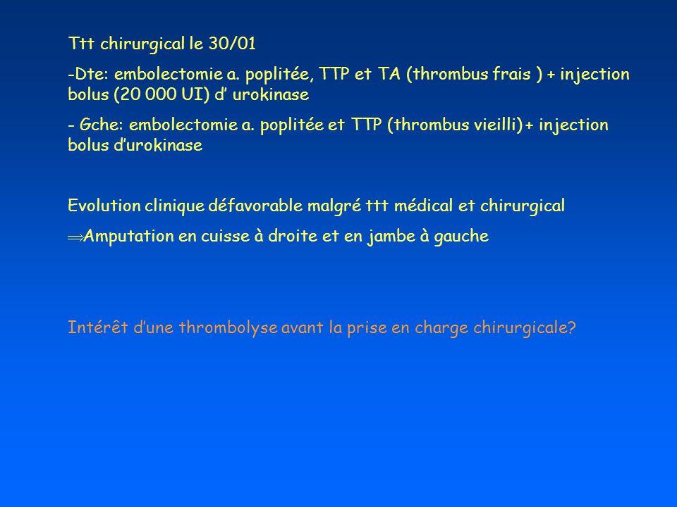 Ttt chirurgical le 30/01 Dte: embolectomie a. poplitée, TTP et TA (thrombus frais ) + injection bolus (20 000 UI) d' urokinase.