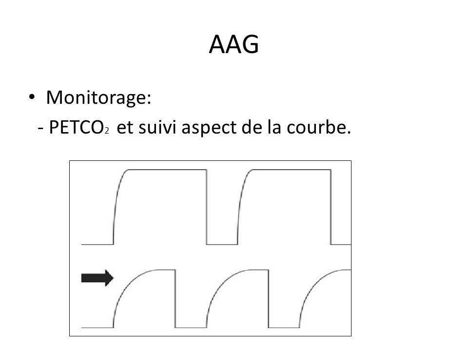 AAG Monitorage: - PETCO2 et suivi aspect de la courbe.