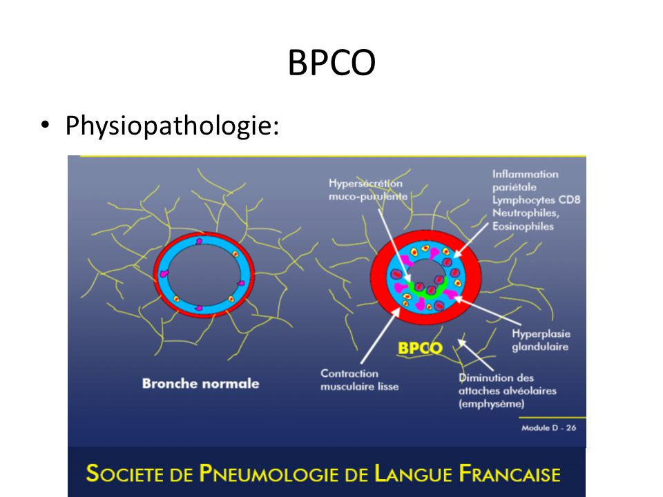 BPCO Physiopathologie: