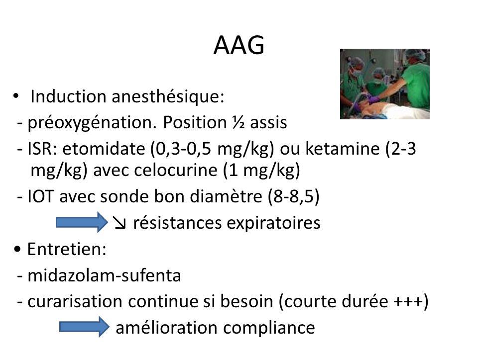 AAG Induction anesthésique: - préoxygénation. Position ½ assis