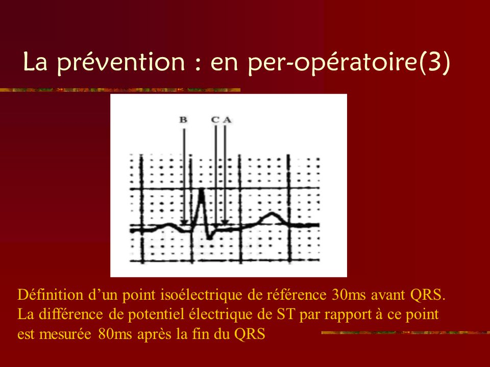 La prévention : en per-opératoire(3)