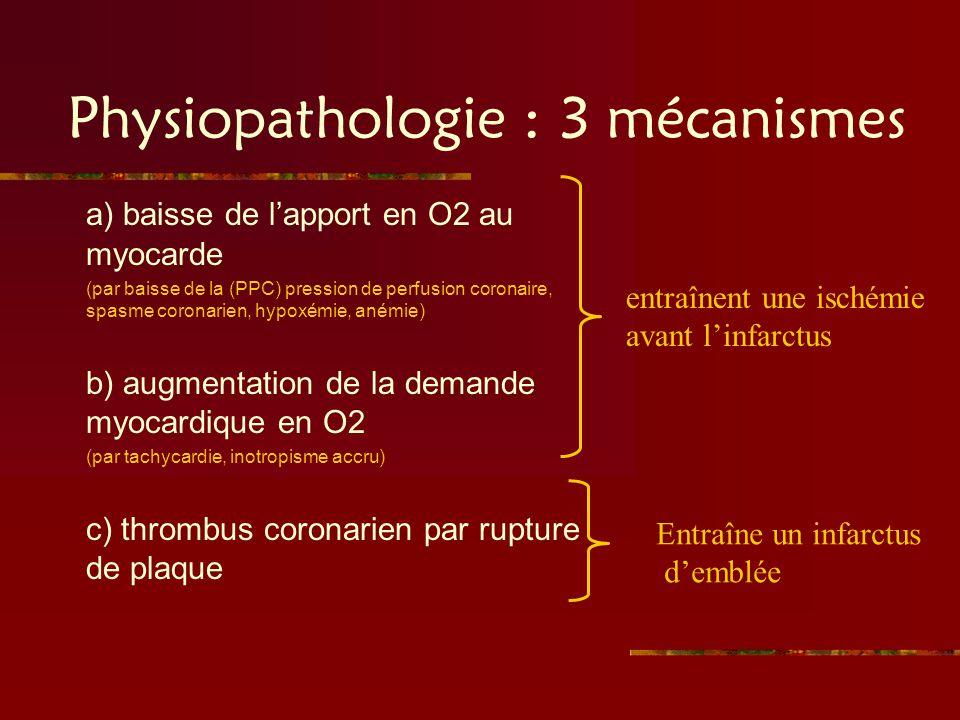 Physiopathologie : 3 mécanismes