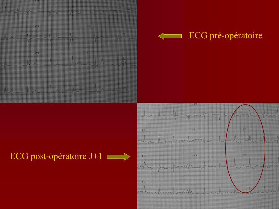 ECG pré-opératoire ECG post-opératoire J+1