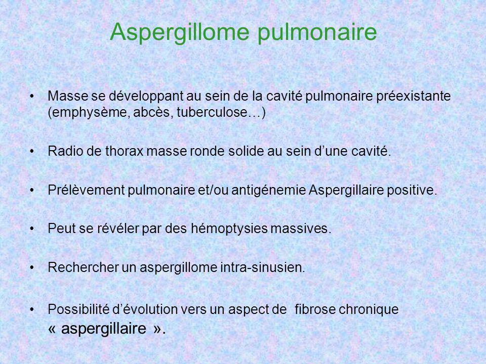 Aspergillome pulmonaire