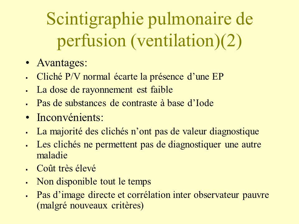 Scintigraphie pulmonaire de perfusion (ventilation)(2)
