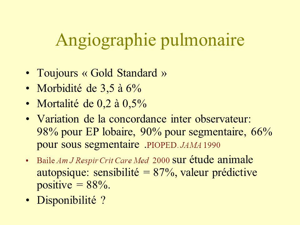 Angiographie pulmonaire