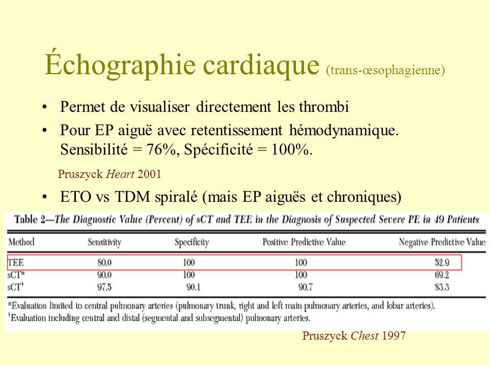 Échographie cardiaque (trans-œsophagienne)