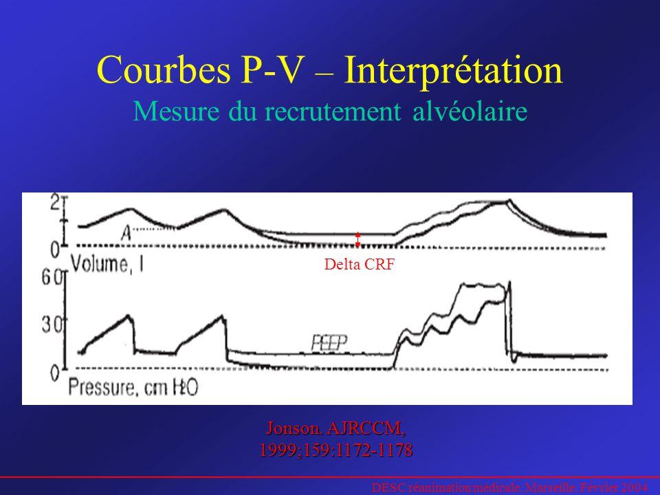 Courbes P-V – Interprétation Mesure du recrutement alvéolaire