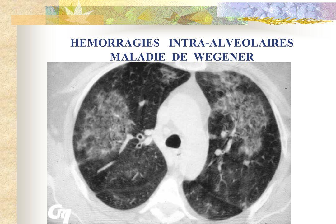 HEMORRAGIES INTRA-ALVEOLAIRES MALADIE DE WEGENER