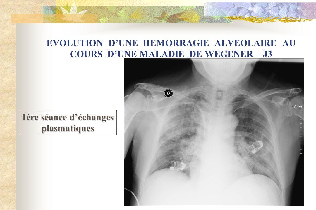 EVOLUTION D'UNE HEMORRAGIE ALVEOLAIRE AU COURS D'UNE MALADIE DE WEGENER – J3