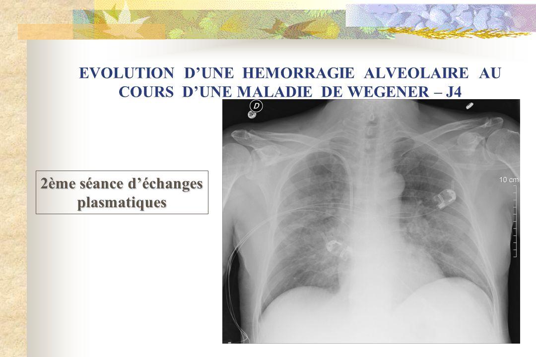 EVOLUTION D'UNE HEMORRAGIE ALVEOLAIRE AU COURS D'UNE MALADIE DE WEGENER – J4