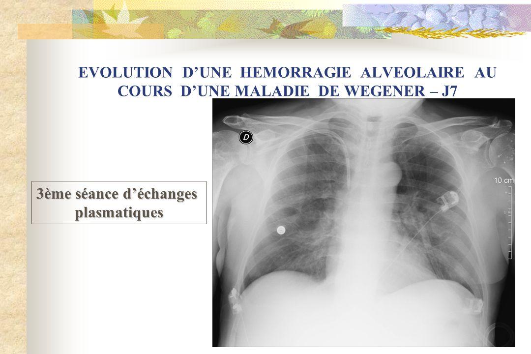 EVOLUTION D'UNE HEMORRAGIE ALVEOLAIRE AU COURS D'UNE MALADIE DE WEGENER – J7