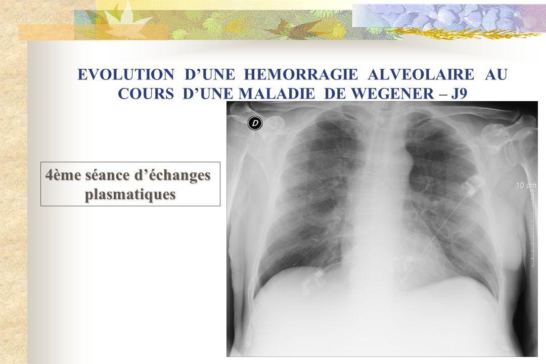 EVOLUTION D'UNE HEMORRAGIE ALVEOLAIRE AU COURS D'UNE MALADIE DE WEGENER – J9