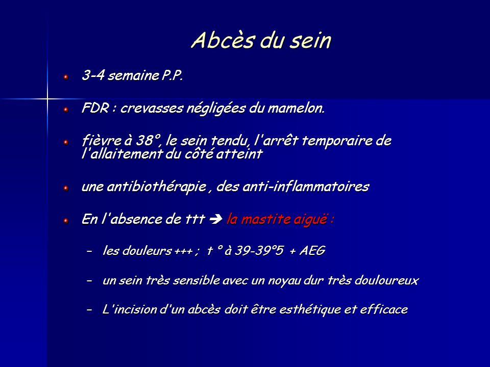 Abcès du sein 3-4 semaine P.P. FDR : crevasses négligées du mamelon.