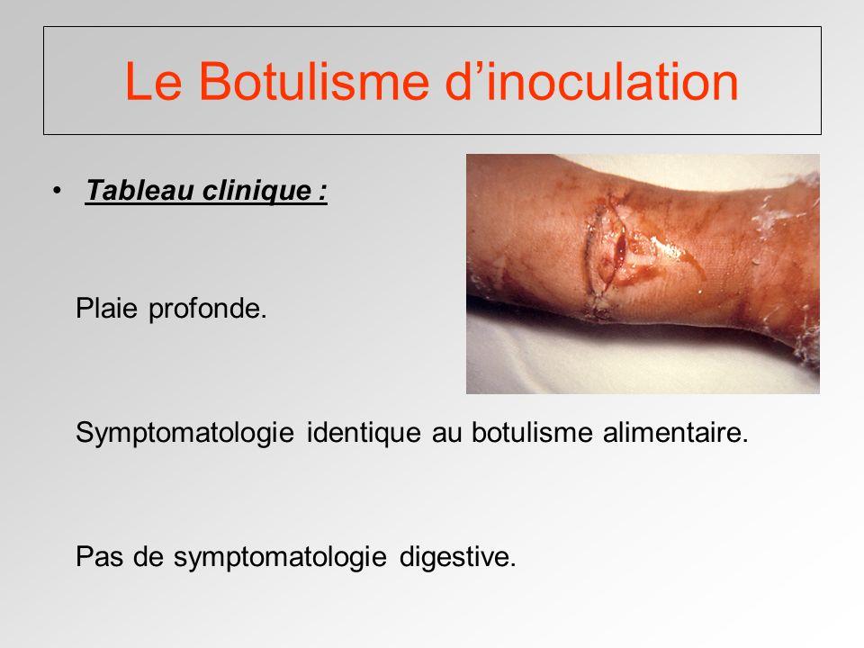 Le Botulisme d'inoculation
