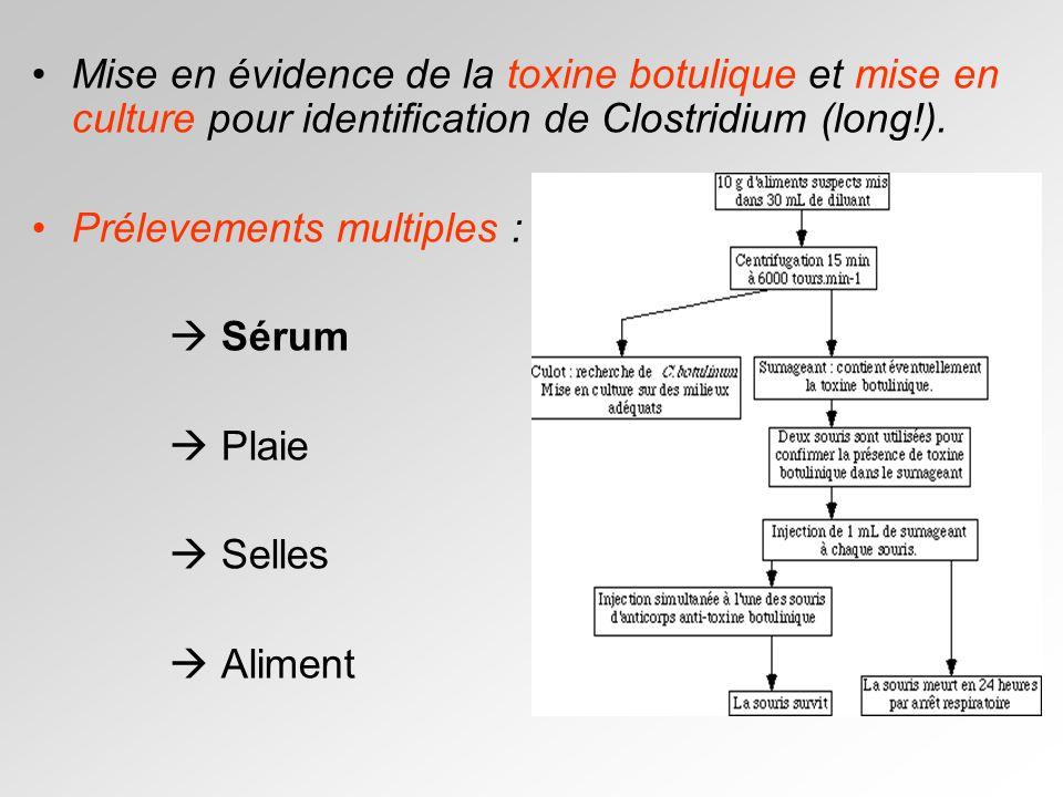 Mise en évidence de la toxine botulique et mise en culture pour identification de Clostridium (long!).