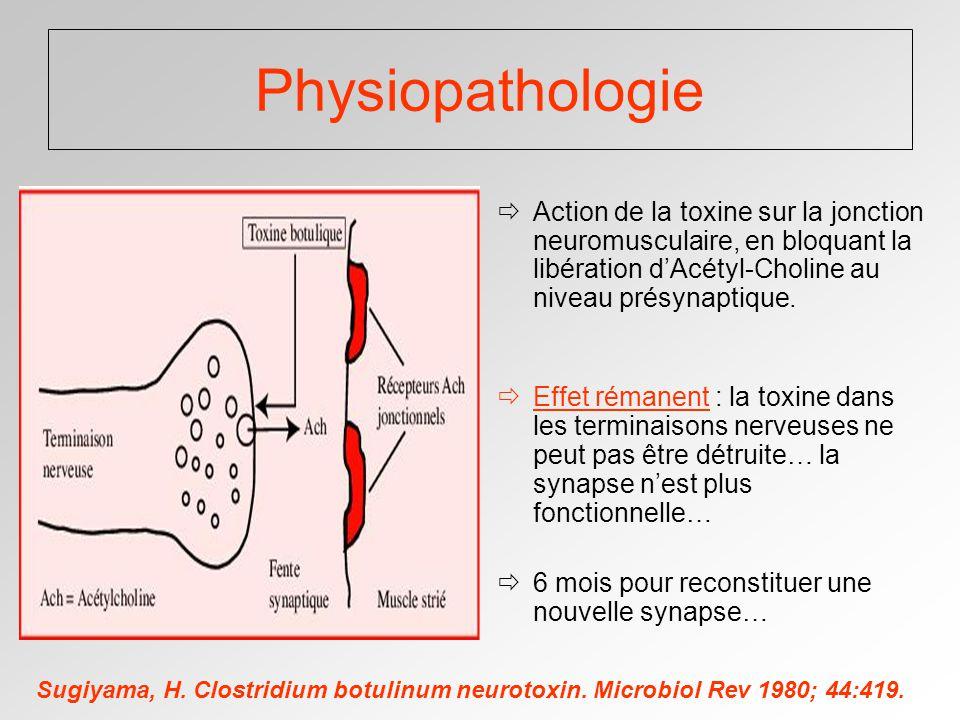 Physiopathologie Action de la toxine sur la jonction neuromusculaire, en bloquant la libération d'Acétyl-Choline au niveau présynaptique.